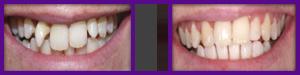 six month braces