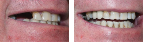 Dental Implants 5