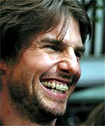 braces and Tom Cruise